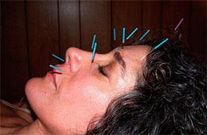 acupuntura facial